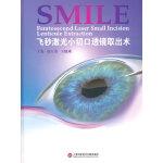 飞秒激光小切口透镜取出术SMILE