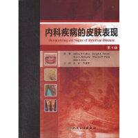 【包邮】内科疾病的皮肤表现(第四版) (美)克兰 人民卫生出版社 9787117161503