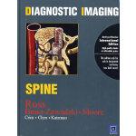 影像诊断学――脊柱(英文)