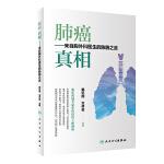 肺癌 真相——来自胸外科医生的肺腑之言
