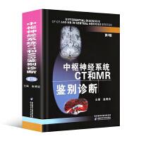 中枢神经系统CT和MR鉴别诊断 第3/三版 鱼博浪 对疾病的临床和病理均有较详细的描述并着重讨论其CT和MR表现特点以
