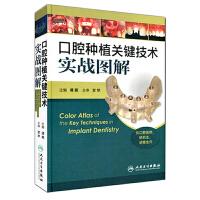 口腔种植关键技术实战图解
