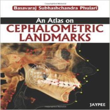[预定]An Atlas on Cephalometric Landmarks 预订图书 国外库房直发 下订后 60日内发货