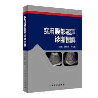 实用腹部超声诊断图解刘学明、蒋天安 著人民卫生出版社