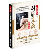 一用就灵 对症艾灸百病消,于志远,中医古籍出版社,9787515216485
