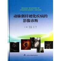 动脉粥样硬化疾病的影像诊断(精) 陈步星//洪楠//高培毅//何文