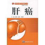 临床肿瘤诊疗程序丛书:肝癌